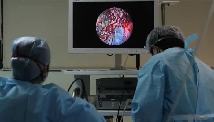 Black Fungus ಬಳಿಕ ಇದೀಗ ಕೋರೋನಾ ರೋಗಿಗಳ ಮೇಲೆ ಮತ್ತೊಂದು ಕಾಯಿಲೆಯ ದಾಳಿ
