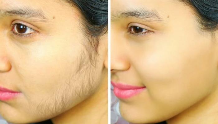 face hair removal tips:ಮುಖದ ಮೇಲಿನ ಕೂದಲಿನ ಸಮಸ್ಯೆಗೆ ಈ ಸುಲಭ ಪರಿಹಾರ ಟ್ರೈ  ಮಾಡಿ