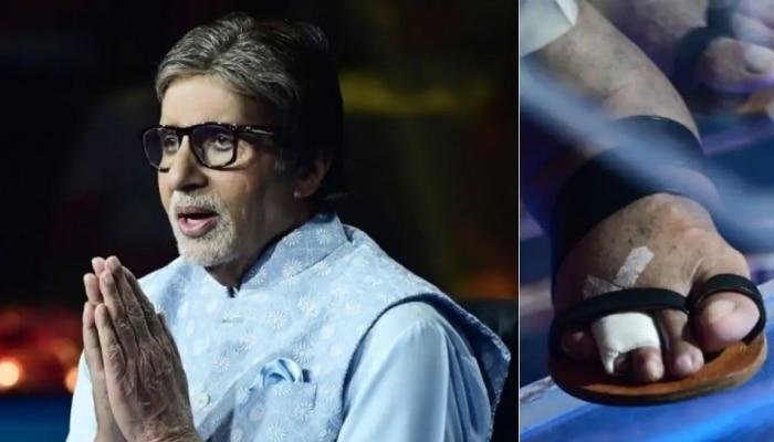 Amitabh Bachchan: ಗಾಯದ ನಡುವೆಯೂ KBC ಶೋ ನಲ್ಲಿ ಭಾಗವಹಿಸಿದ ಅಮಿತಾಬ್ ಬಚ್ಚನ್